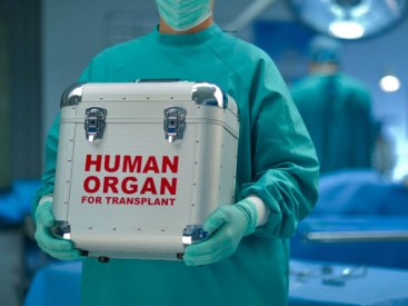 transplant-1